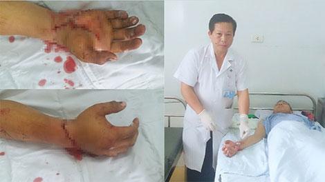 Bệnh viện 19-8 nối thành công bàn tay bị chém đứt rời