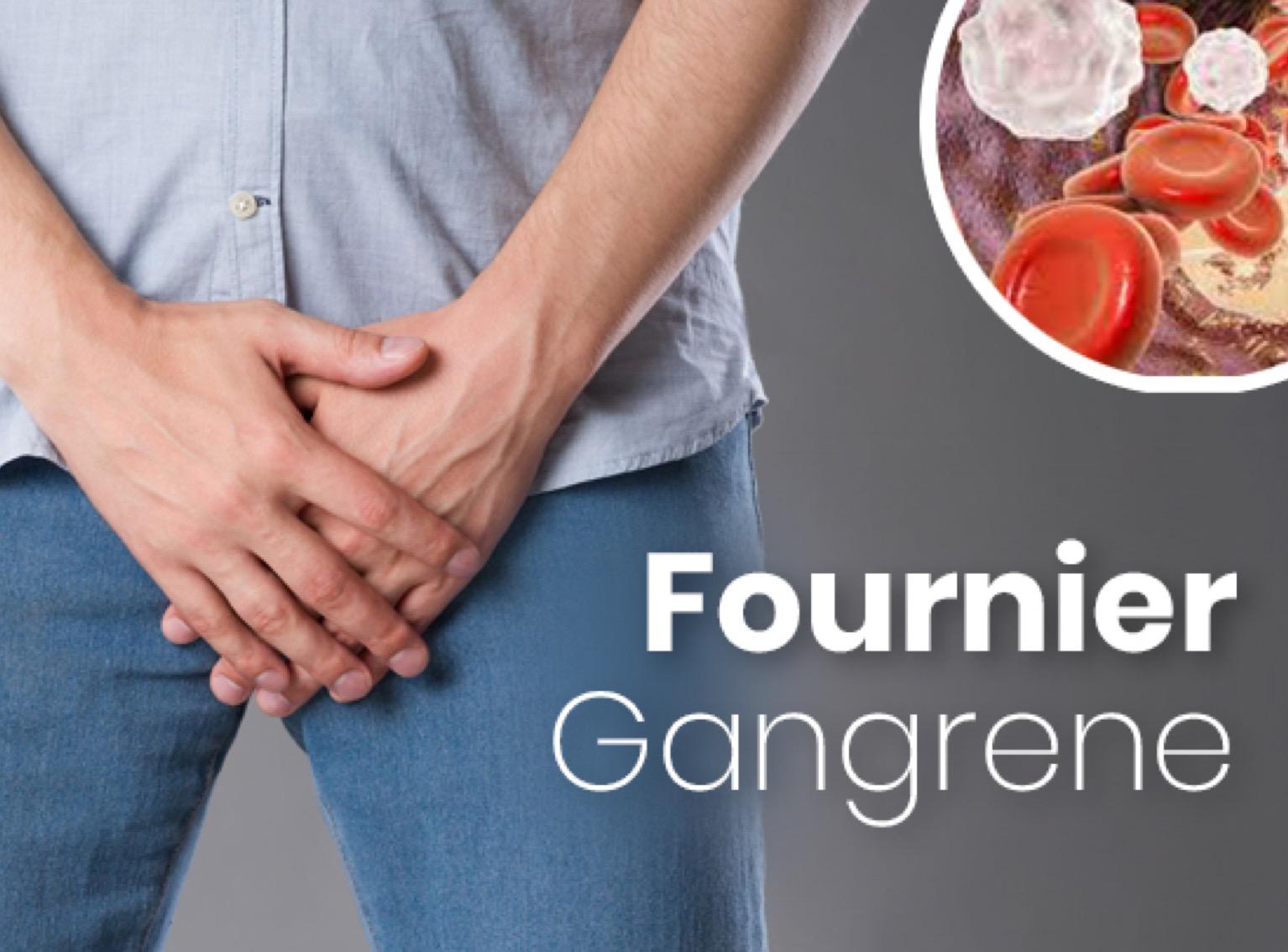 Khoa Ngoại tiết niệu điều trị thành công 1 trường hợp Hội chứng hoại thư Fournier hiếm gặp