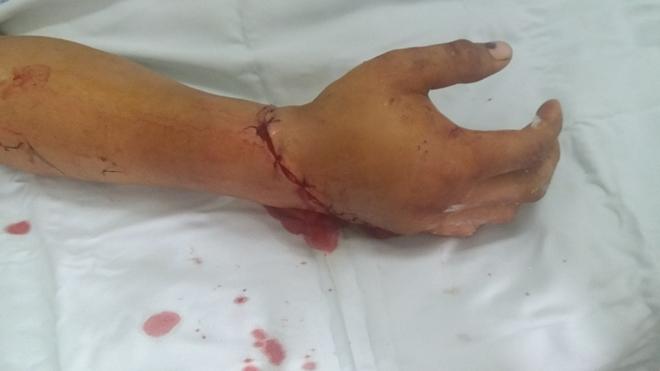 Ekip bác sĩ trẻ của Bệnh viện 19-8 nối thành công bàn tay đứt rời